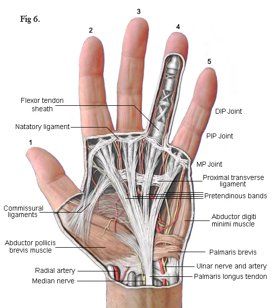dupuytren's recurrence label hand diagram hand diagram ligaments